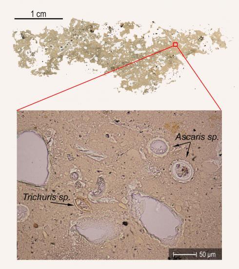 1 parasiteeggs