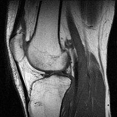 230px-mr-knee.jpg