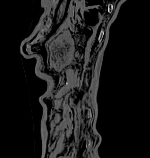4843592 6 8985 image aux rayons x de l estomac et de 0c49b4dd7b2ff659d20fec8c58b44a1d