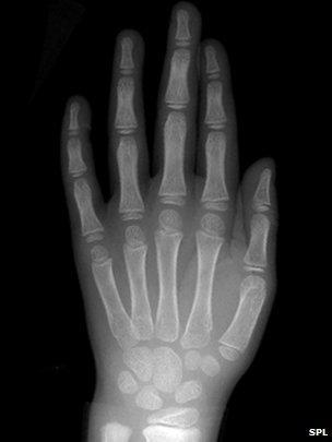 64866272-c0034588-normal-pediatric-hand-x-ray-spl.jpg