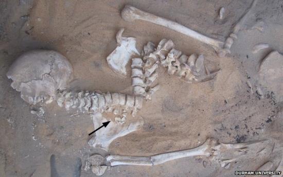 74084735 skeleton