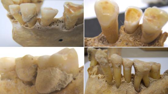 78485065 624 teeth