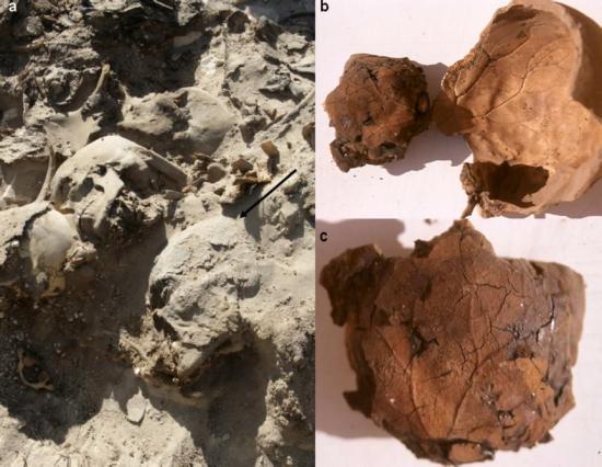 Brain vessel mummy 1