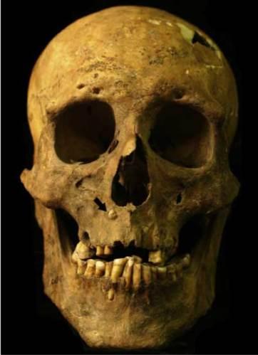 Burial 37 skull