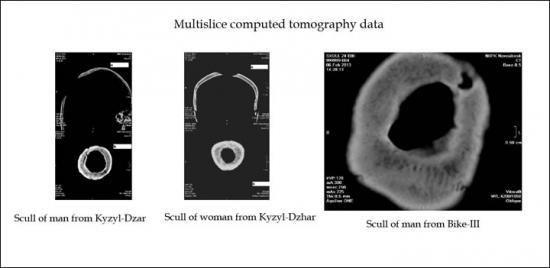 Inside multislice tomography