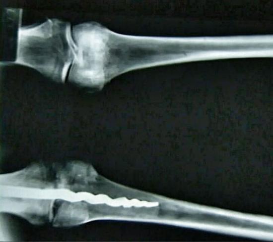 Knee surgery mummy 315218
