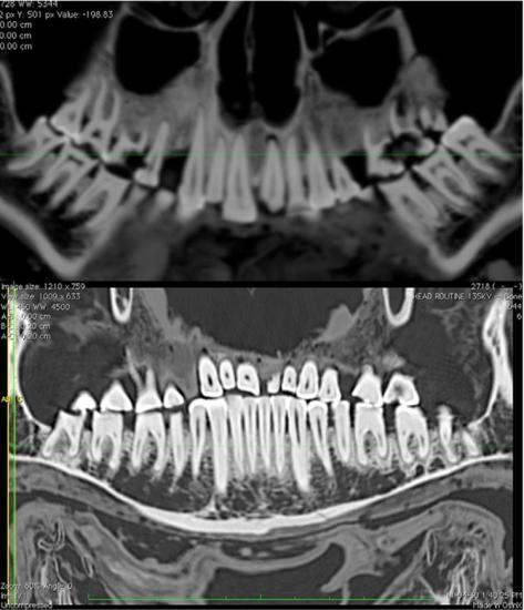 mummy-dental-filling-3.jpg