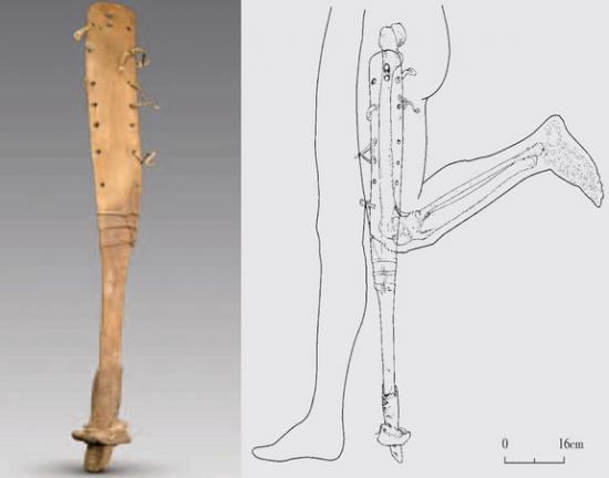 Prosthetic leg china tomb