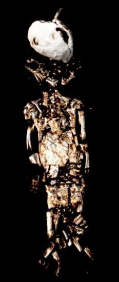 Scanning the pharaohs fetus 5mo daughter of tut 3d ct 433x1024
