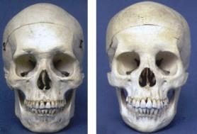 skull-frontal-male-female2.jpg