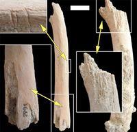 sn-bone-thumb-200xauto-14889.jpg