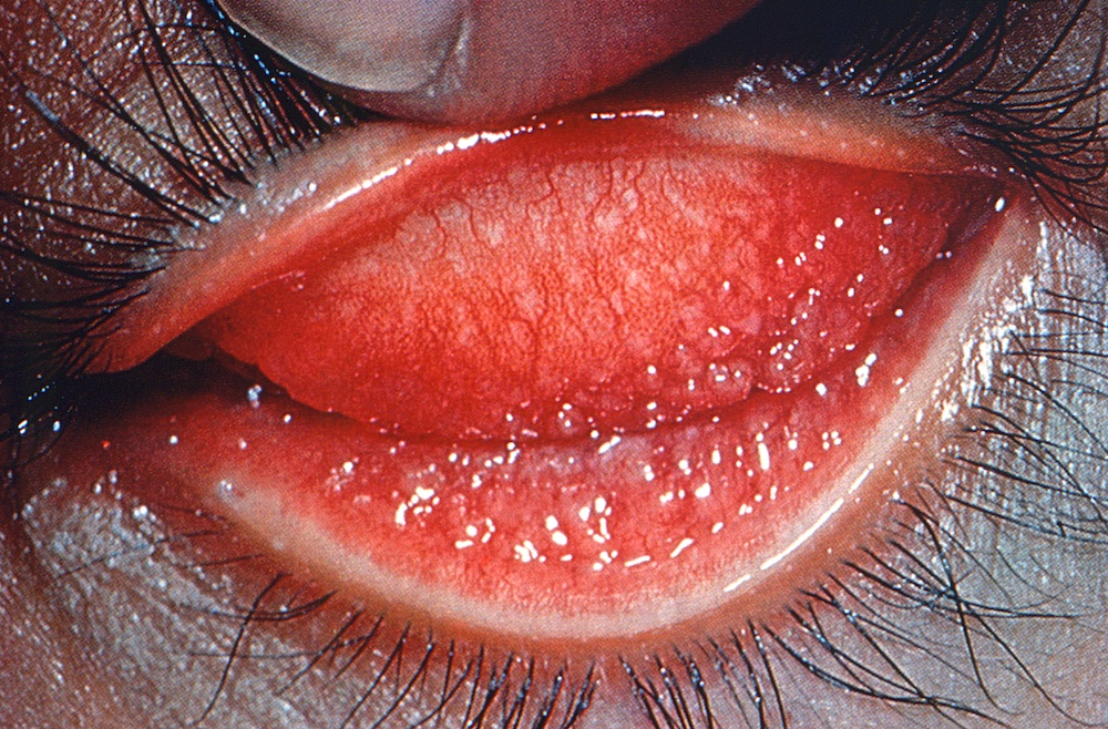 Chlamydia In The Eye Eyelid inflammation caused by