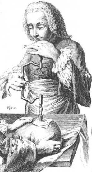 Trepanation illustration france 1800s