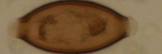 Whipwormegg 2